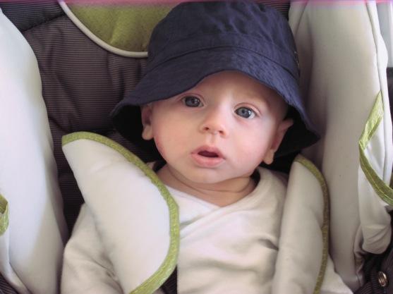 Baby Food Allergy Rash Location